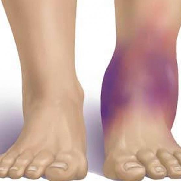 Травма голеностопа у женщин